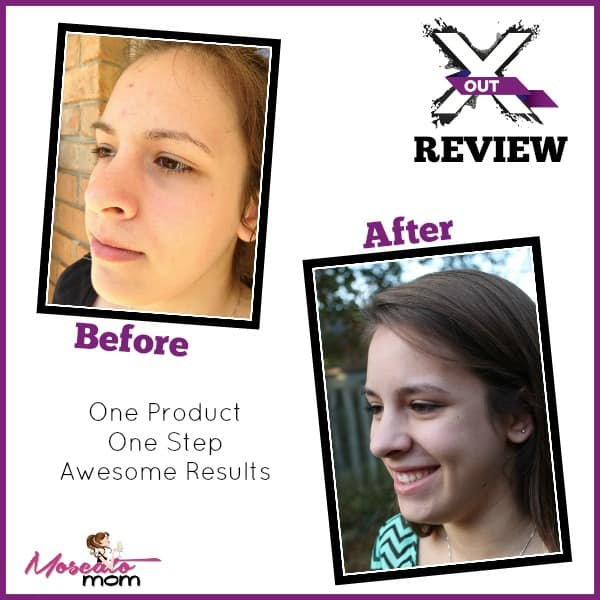 xout review before and after 2