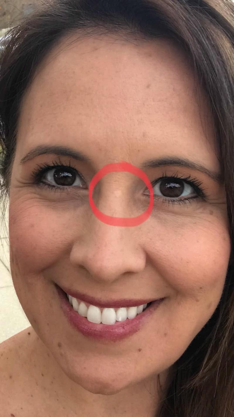 womans face with basal cell carcinoma circled