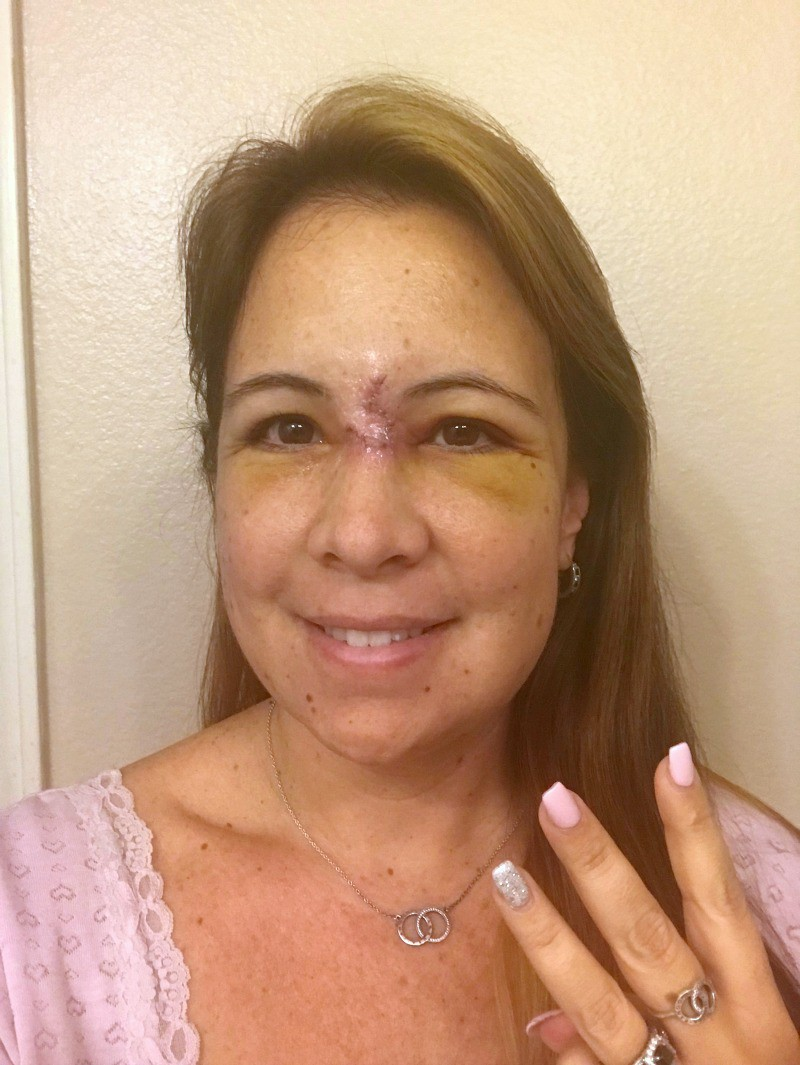 woman with exposed surgery incision from basal cell carcinomaa holding up three fingers