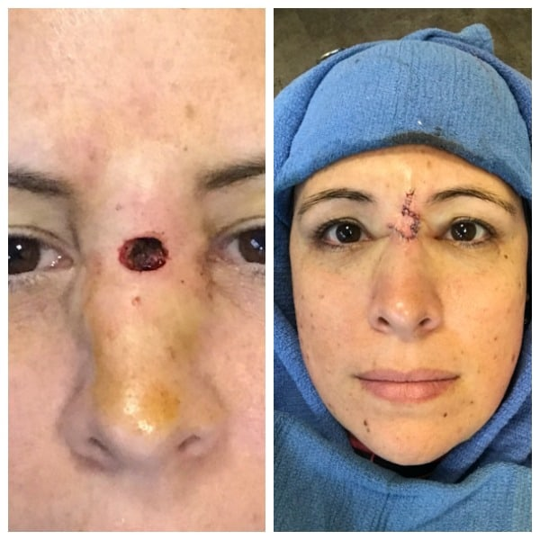 womans face with basal cell carcinoma removed