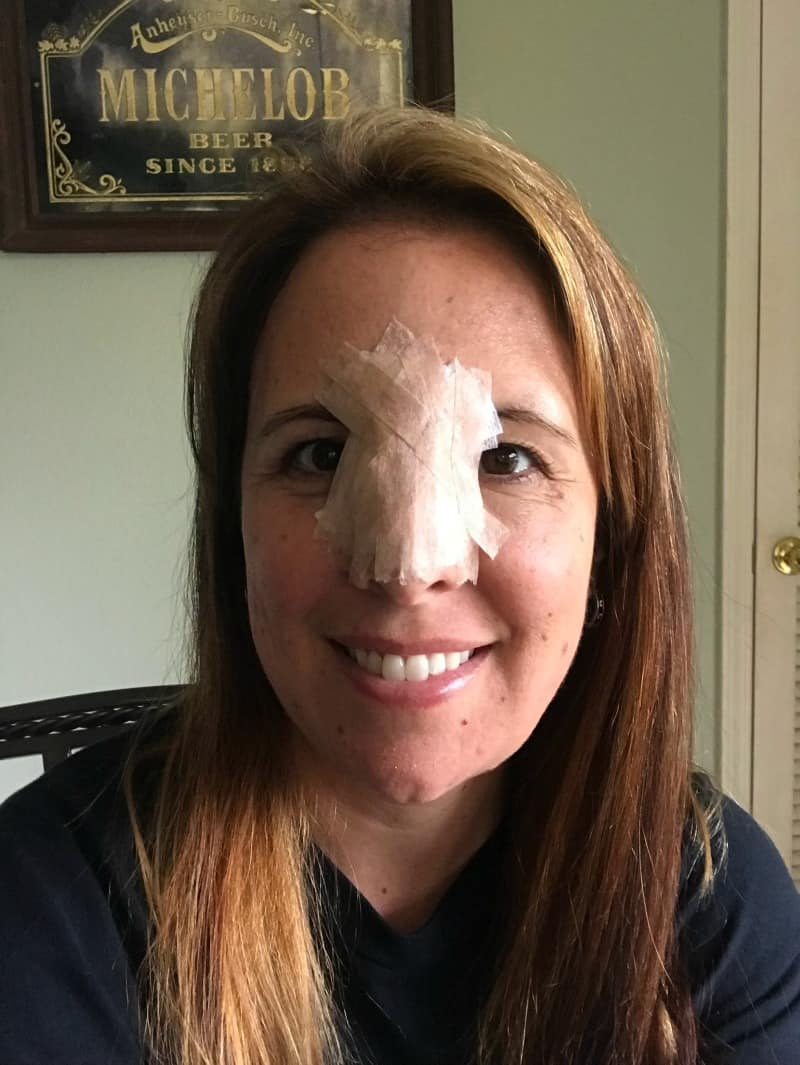 woman with pressure dressing on face